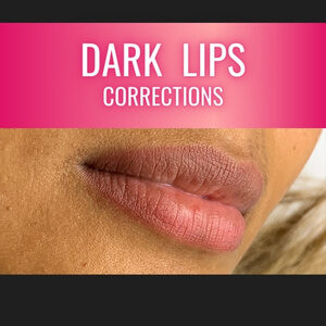 correction of hyper pigmented dark lips with permanent makeup